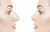 Rhinoplasty Market Size Worth $5.4 Billion by 2026
