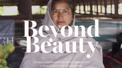 "Witness ""Beyond Beauty"" on RealSelf"