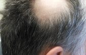 Alopecia market to reach $13.65 billion by 2027: Reports and Data