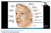 Thread-lift for facial rejuvenation