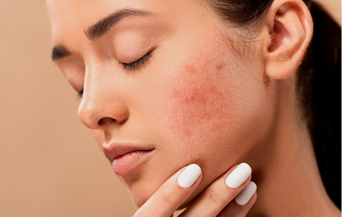 DermaAngel enters the Indian Market with the first officially registered acne patch