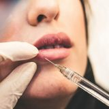 World facial injectable from 2021-2028