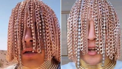 Mexican rapper Dan Sur gets gold chains surgically implanted in his scalp
